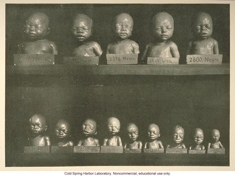 """Comparison of white and negro fetuses"" (1)"