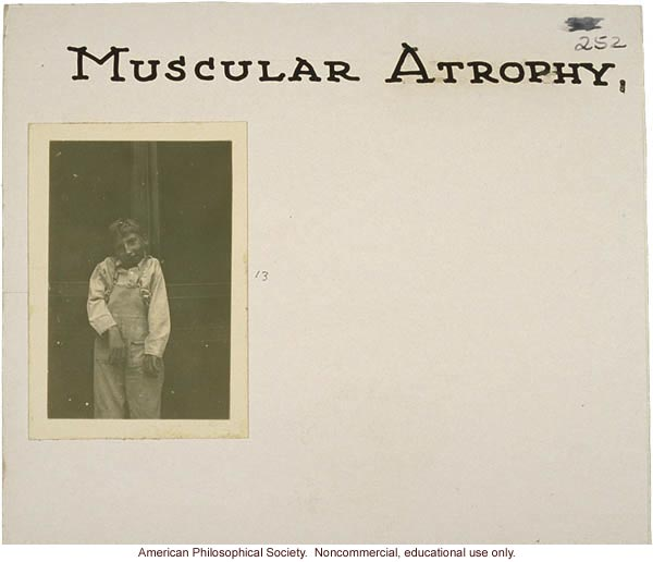 """Muscular atrophy,"" flash cards on genetic defects"